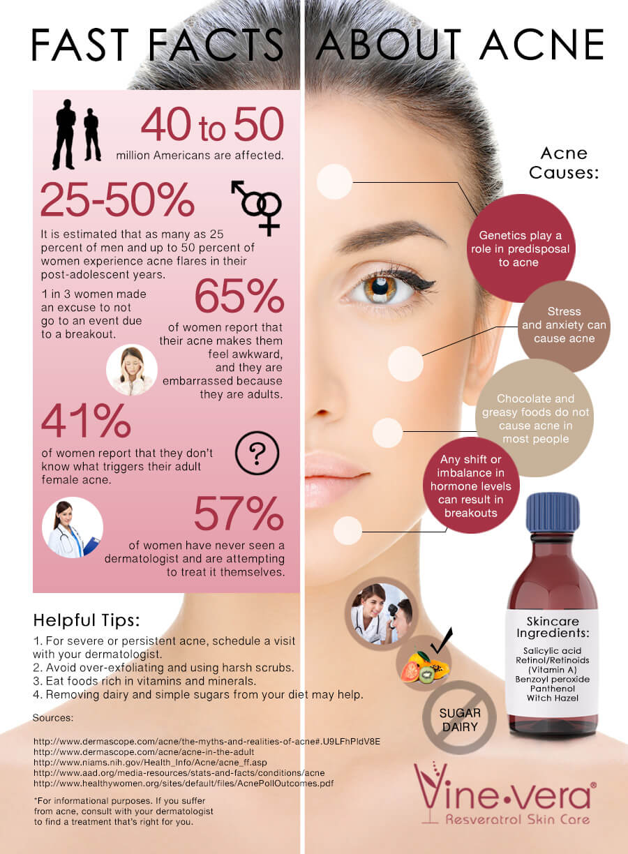 Infographic on acne