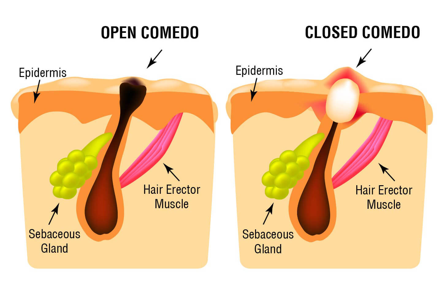 Infographic on open comedone versus closed comedone (on skin)