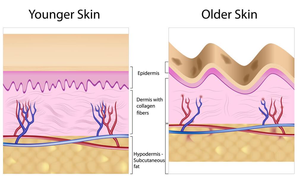 Illustration of younger versus older skin